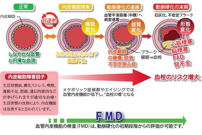 FMD検査(血管内皮機能検査)   セントラルクリニックグループ